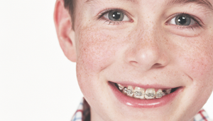 How do orthodontists bond braces to teeth?