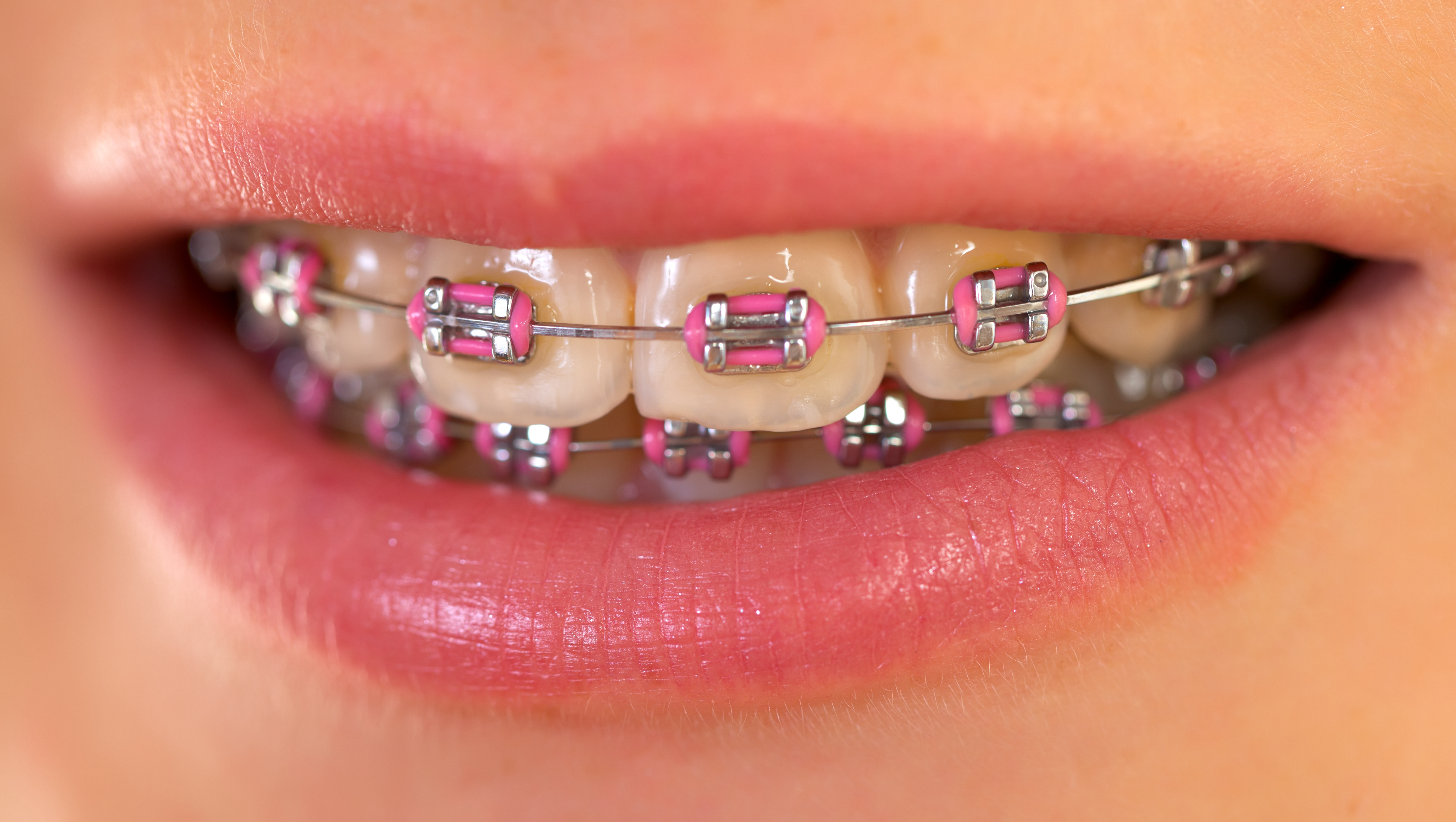 Real orthodontic answers