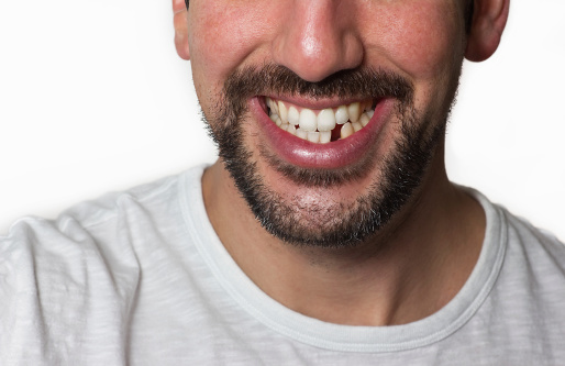"""Adding a """"pontic"""" tooth during Invisalign treatment"""