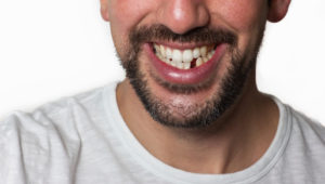 "Adding a ""pontic"" tooth during Invisalign treatment"