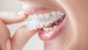 Do I really need to wear a retainer after braces?