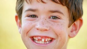 What if my child is missing teeth?