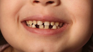 How young is too young for orthodontic treatment?