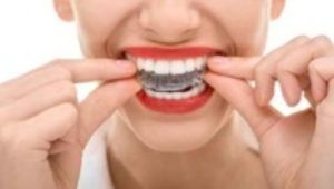 The straight scoop: Choosing between traditional braces and Invisalign