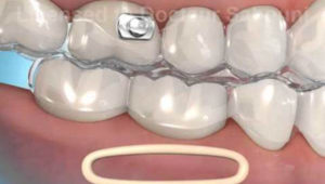Rubber bands and orthodontics
