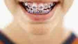 What color are your braces?