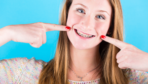 Does My Child Need a Palatal Expander?