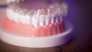 Could in-office 3D printing replace Invisalign?