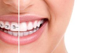 What's the cost difference between traditional braces and Invisalign?