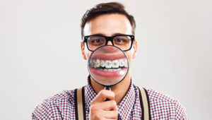 Invisalign can limit a mouth full of braces