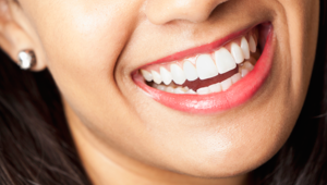 Get it Straight: Busting myths about orthodontics