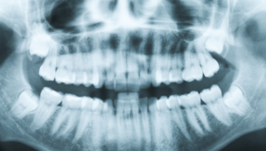 What is a dental cone beam image?