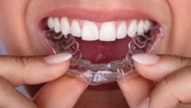 Getting ready for an implant: Invisalign goes beyond straightening teeth