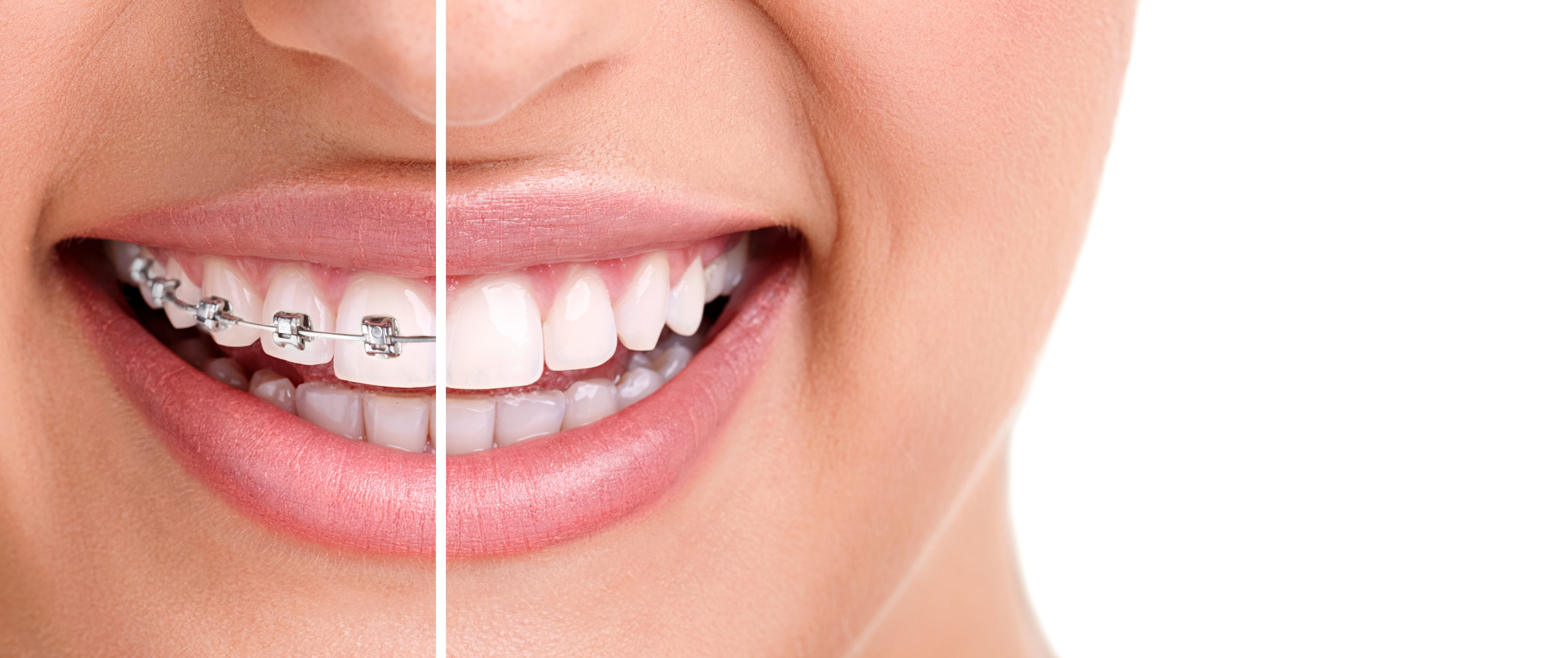 Invisalign costs and benefits smiles by white john white dds msd invisalign cost benefits solutioingenieria Choice Image