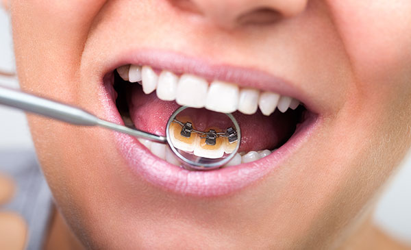 Are lingual braces the best option?