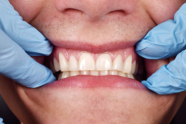 What shape are your gums?